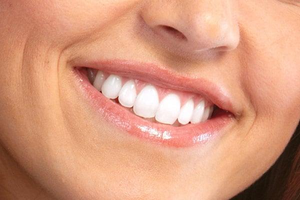 отбеливание зубов в г. Сочи